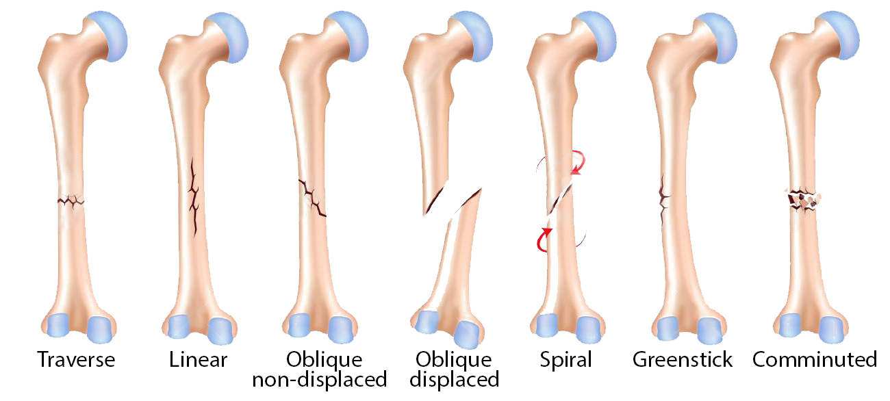 The Orthopedic Institute at Southwest Health | Types of Fractures